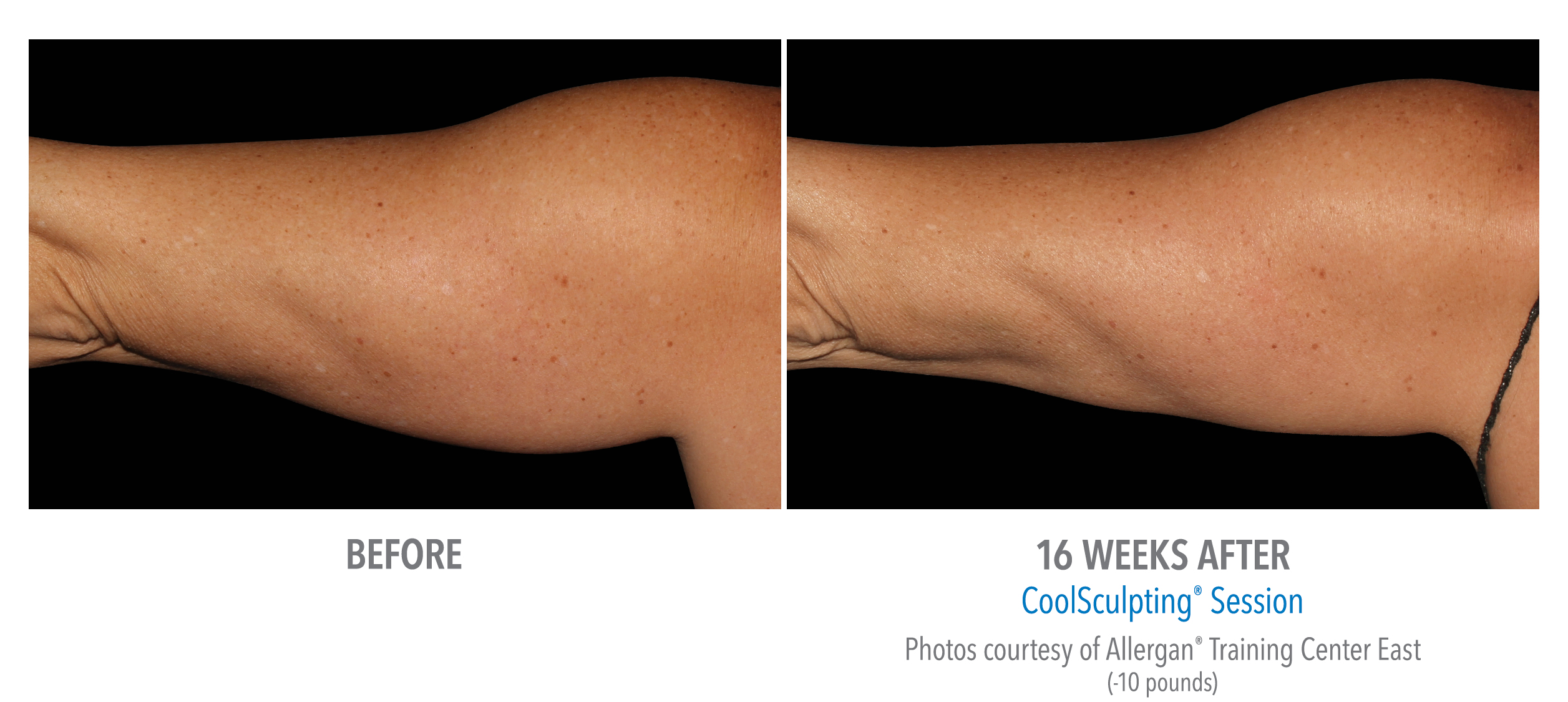 coolsculpting® before and after female upper arm westbrook, connecticut