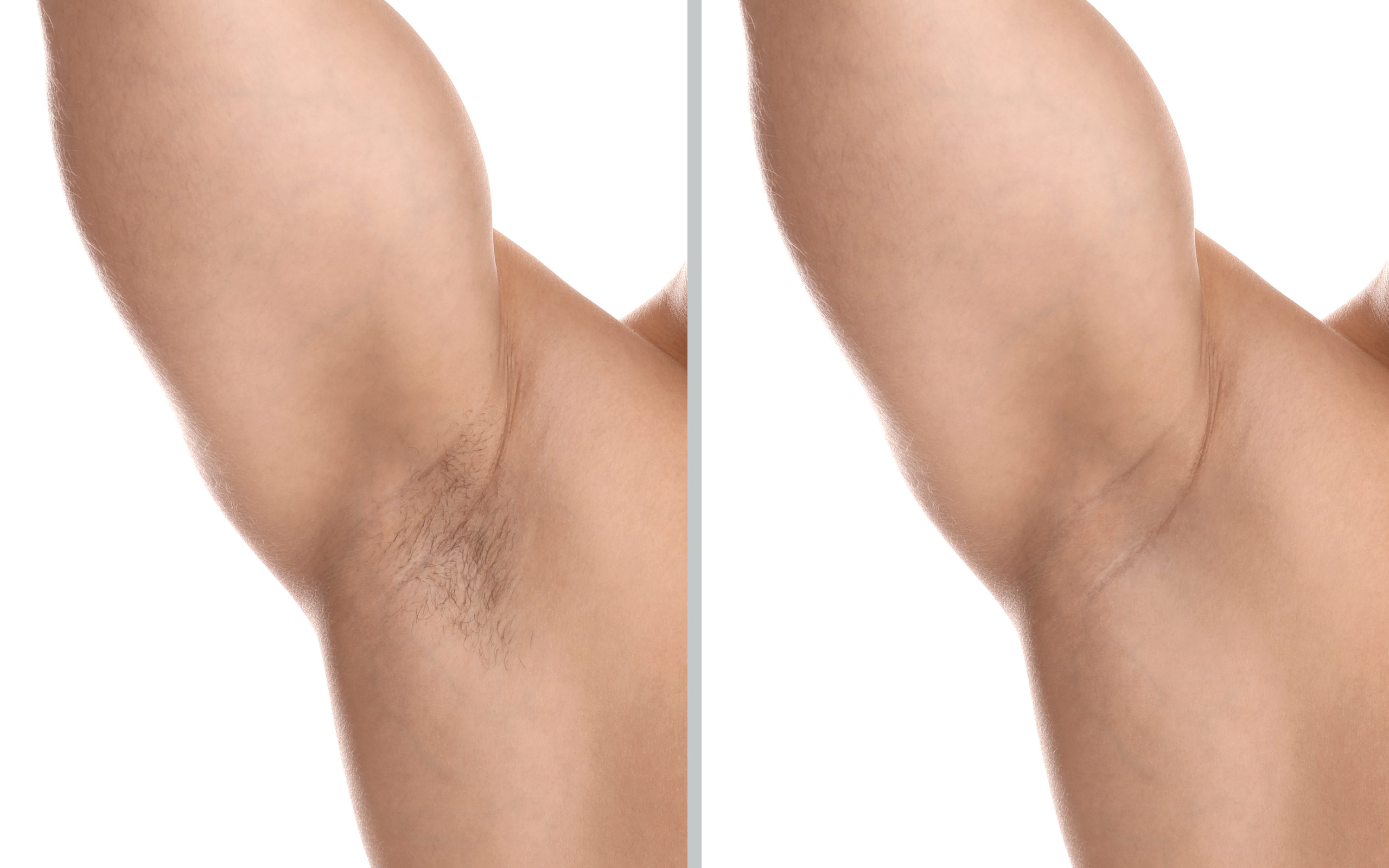 before and after laser hair removal man underarm