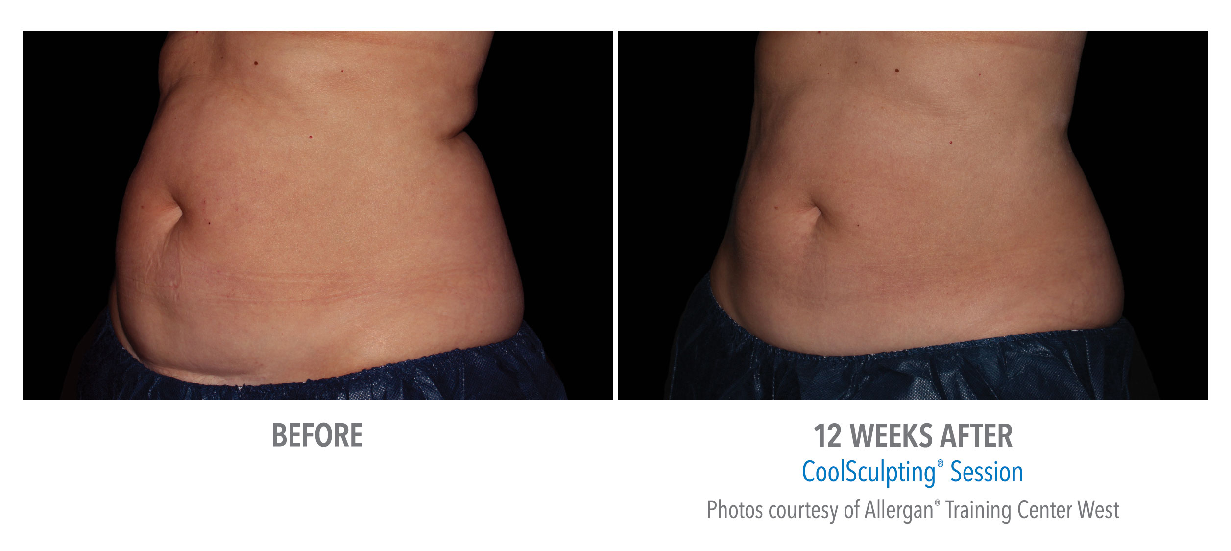 coolsculpting® before and after female abdomen westbrook, connecticut