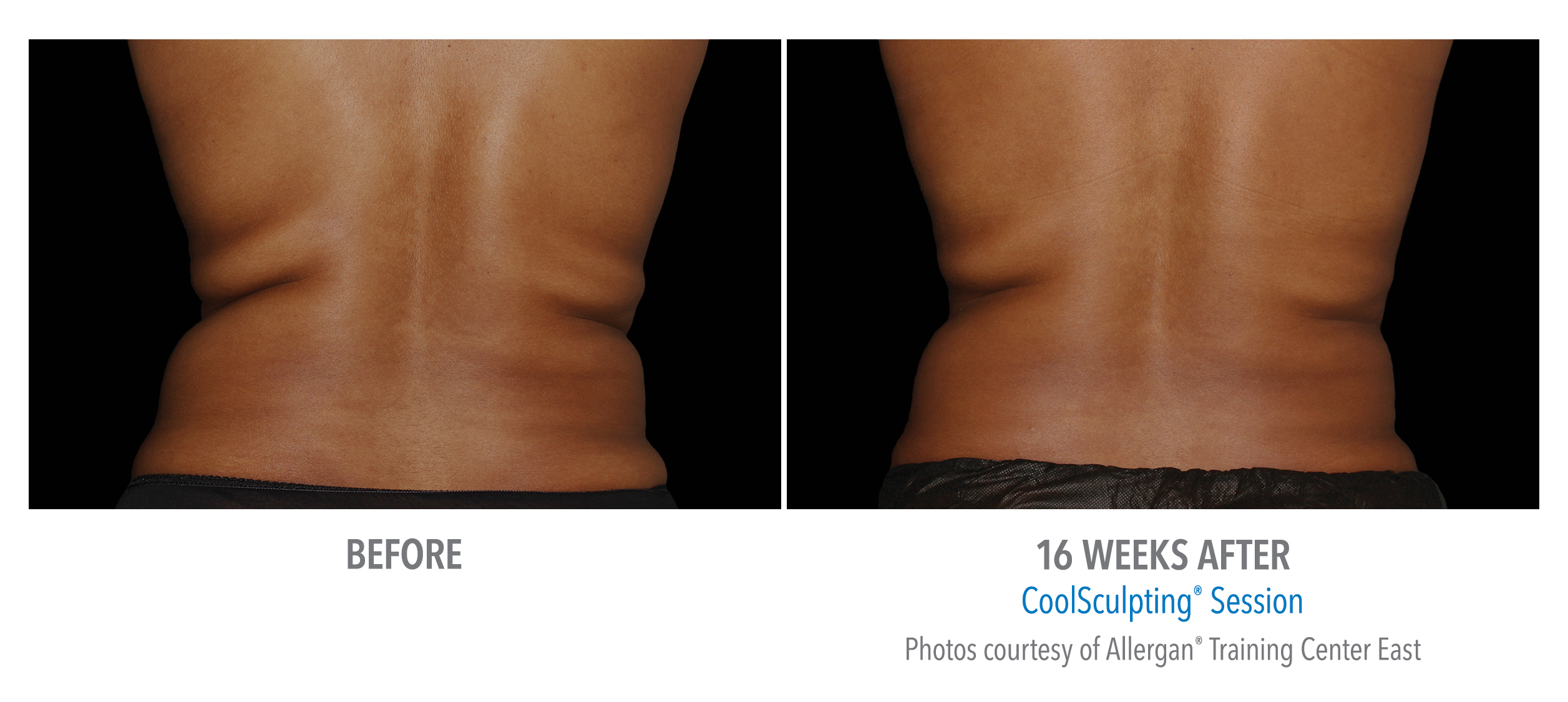 coolsculpting® before and after female love handles westbrook, connecticut