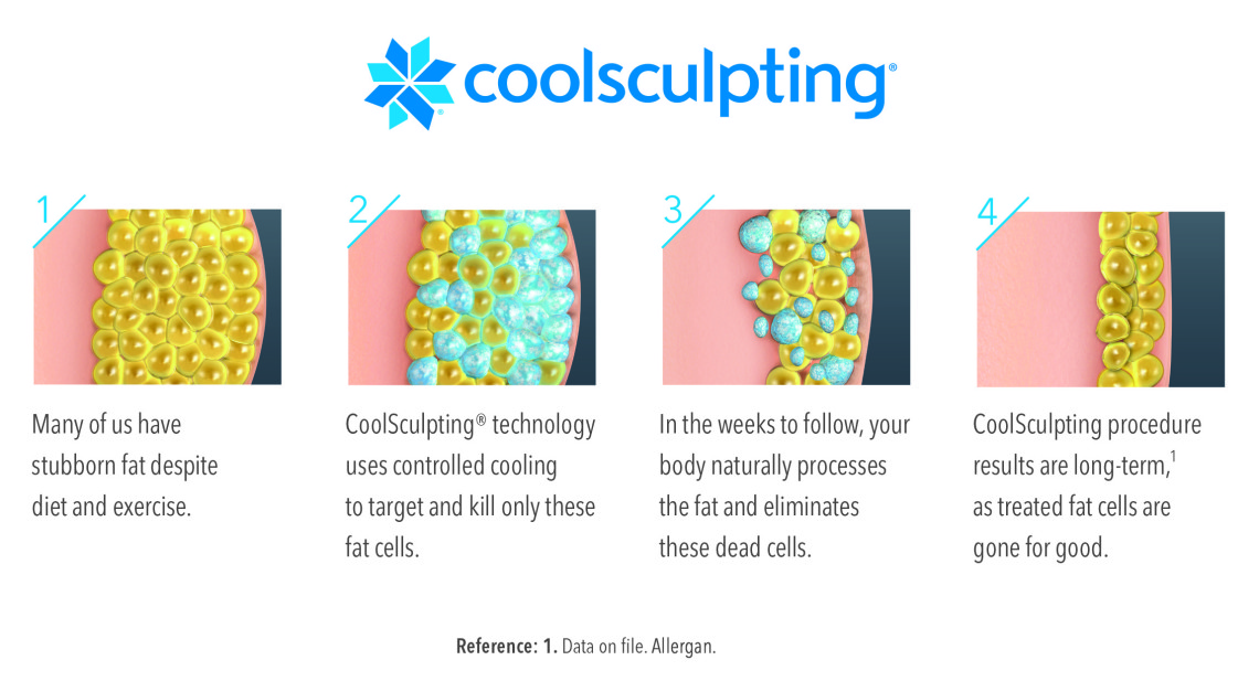 how coolsculpting® works in 4 steps