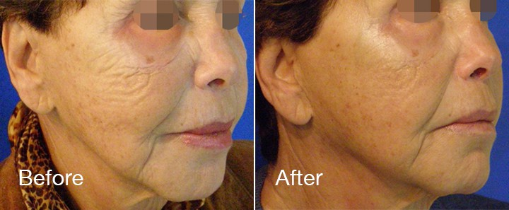 before and after microneedling of woman's face