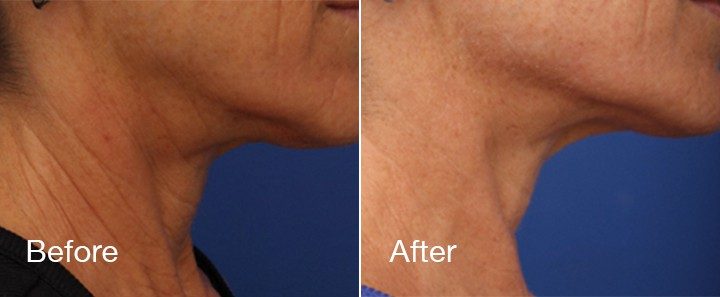 before and after microneedling of woman's chin and neck