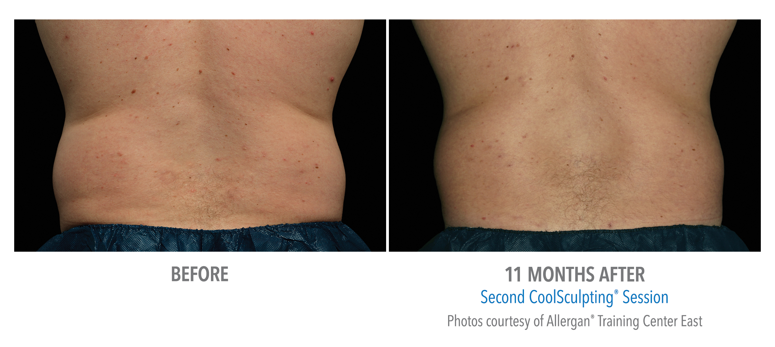 coolsculpting® before and after male love handles westbrook, connecticut