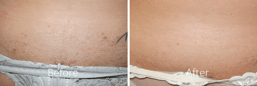 before and after laser hair removal woman bikini area