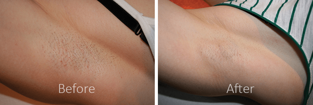before and after laser hair removal woman underarm