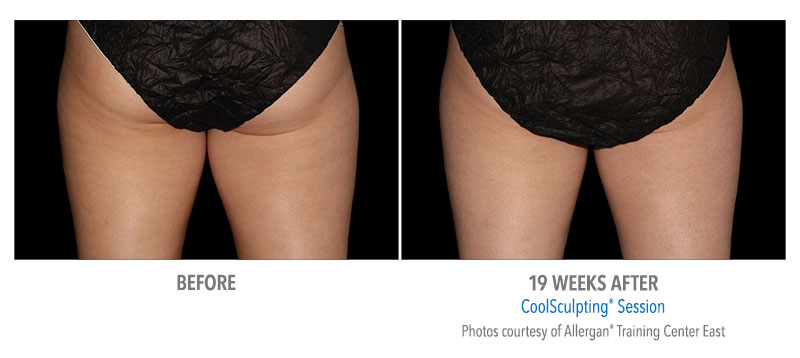 coolsculpting® before and after female buttocks westbrook, connecticut