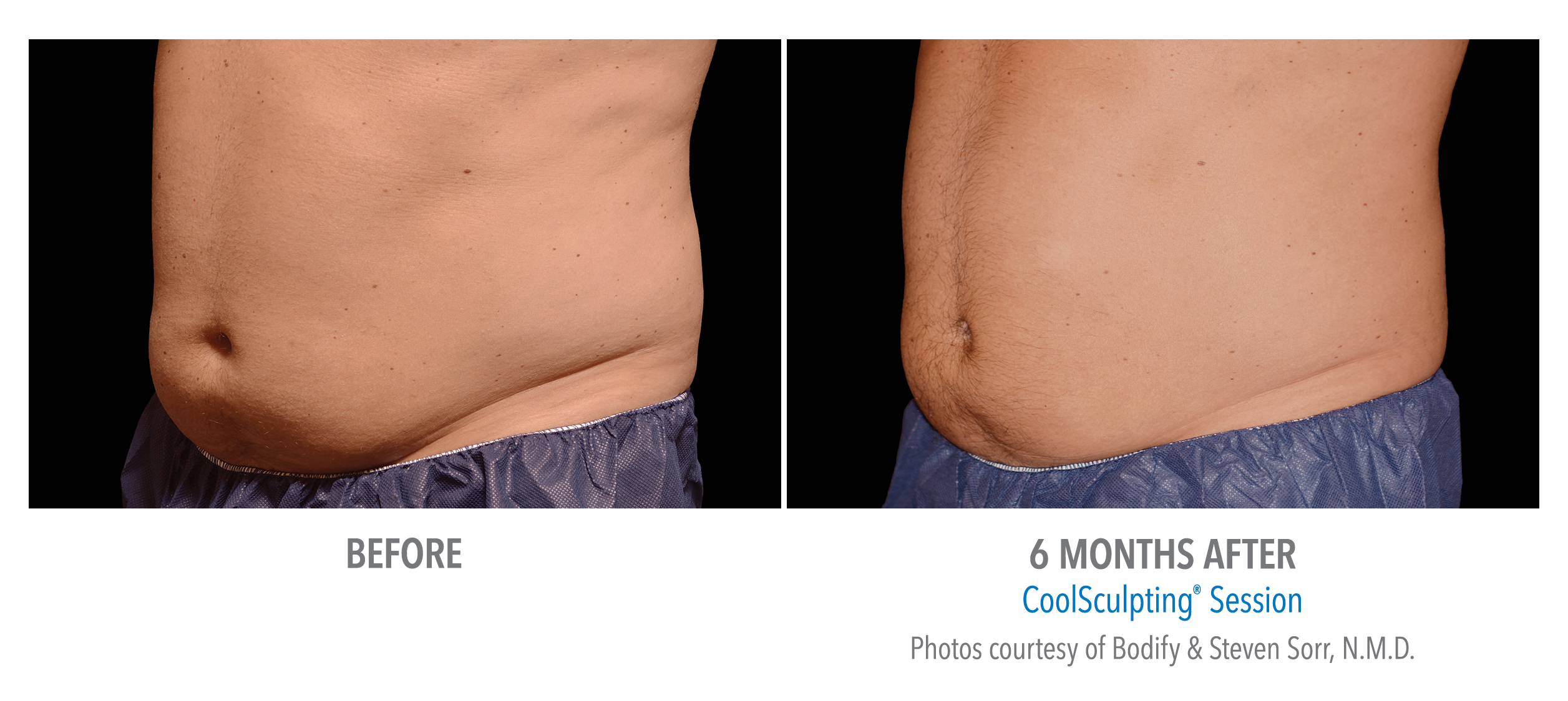 coolsculpting® before and after male abdomen westbrook, connecticut