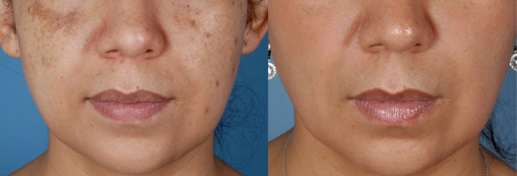 Chemical peels Before and Afters